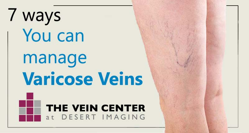 7 Ways You Can Manage Varicose Veins
