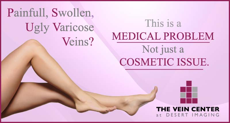 Varicose veins are not just a cosmetic issue