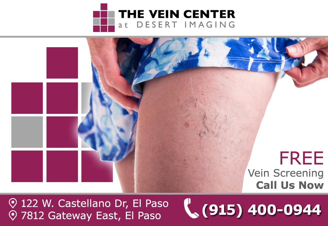 THE CAUSE OF SPIDER VEINS