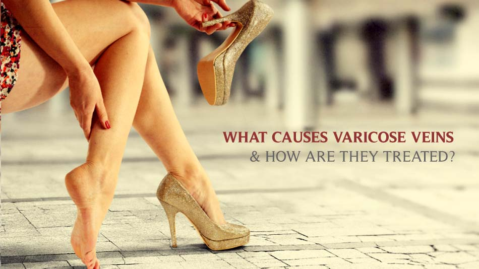 WHAT CAUSES VARICOSE VEINS & HOW ARE THEY TREATED?
