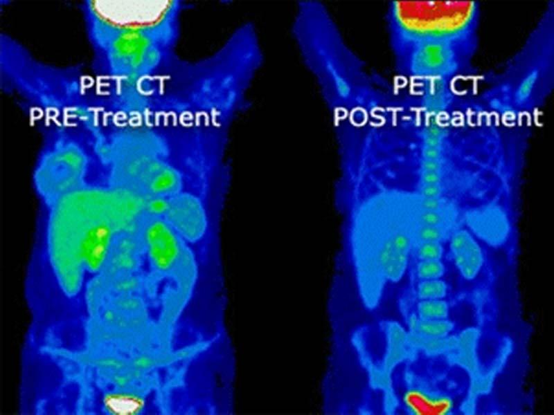 Petct Scan At Desert Imaging